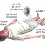 Dealing with heat exhaustion and heatstroke